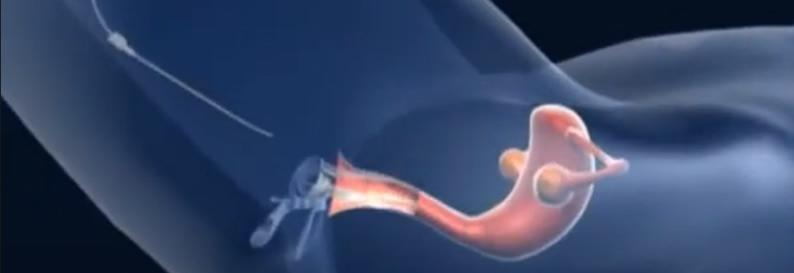 Kısırlık Tedavisinde Aşılamanın Hastaya Uygulanması